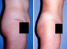 Abdominoplasty - Tummy Tuck Procedure Results