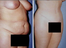 Abdominoplasty - Tummy Tuck - Puget Sound