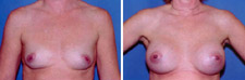 Breast Augmentation East Side