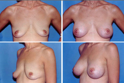 Breast enhancement illinois result