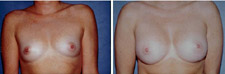 Breast Augmentation Plastic Surgery Results