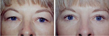 Eyelid Surgery / Blepharoplasty Before and After