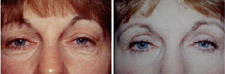 Eyelid Surgery Blepharoplasty Procedure Results