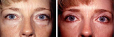 Eyelid Surgery Blepharoplasty Puget Sound