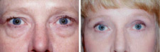 Eyelid Surgery Blepharoplasty Eye Lift