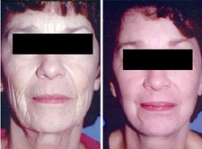 Laser Skin Resurfacing - East Side