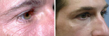 Laser Skin Resurfacing Procedure Results