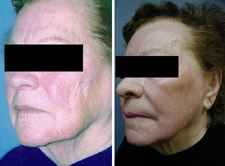 Laser Skin Resurfacing Results