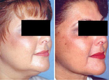 Liposuction Chin