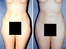 Liposuction Hips