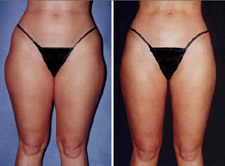 Liposuction, Lipo