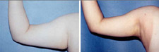 Liposuction Plastic Surgery Underarms