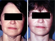 Facelift Results, Kirkland