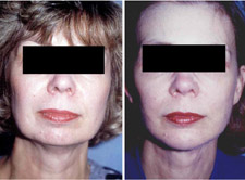 Facelift Results, Plastic Surgery